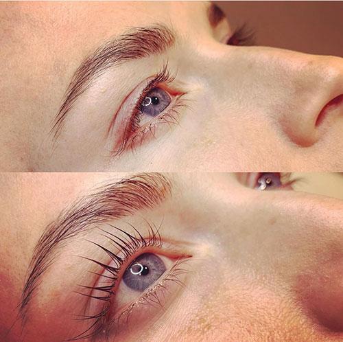 Eyelash Transformation